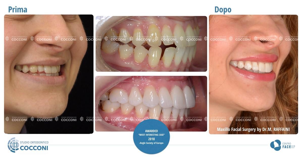 anomalie di forma dei denti